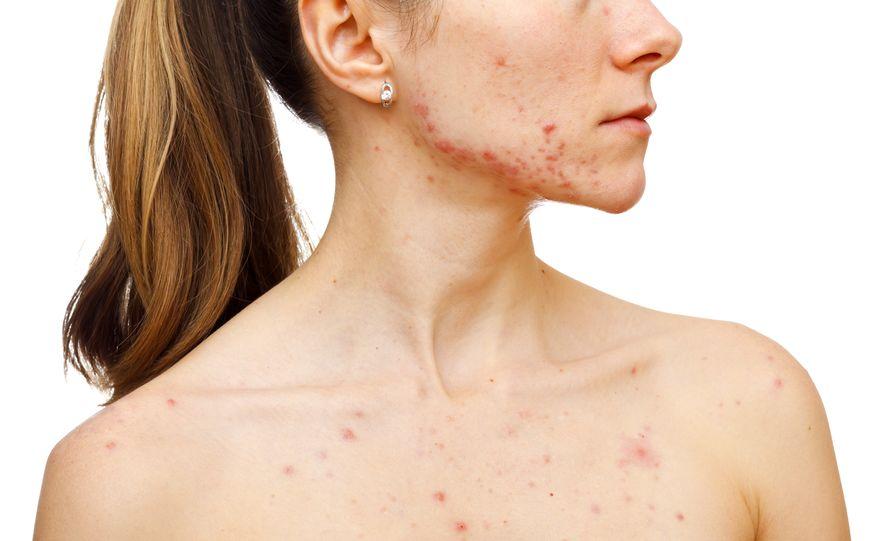 žena s akné na tvári a tele
