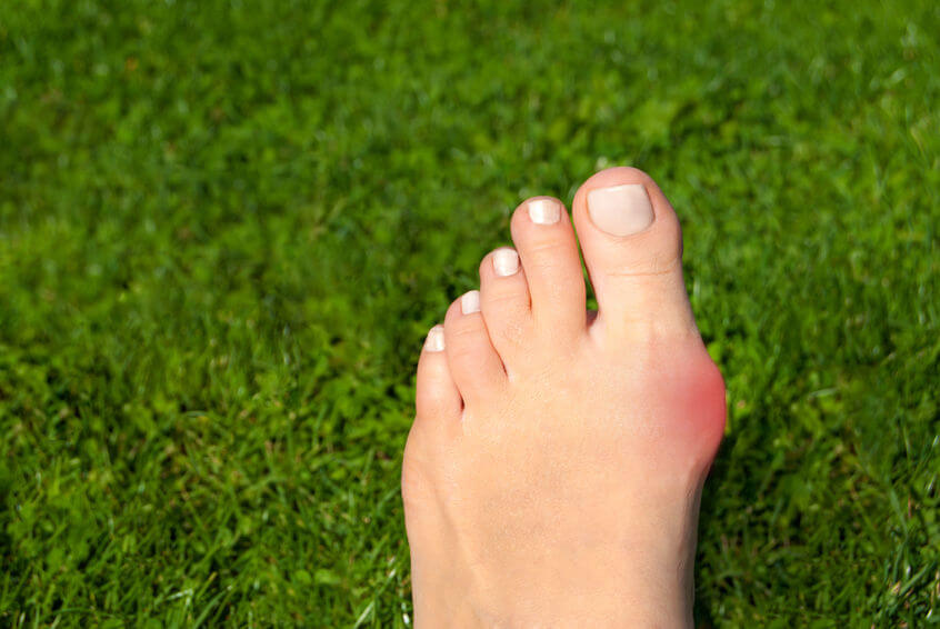 Hallux valgus (vybočený palec) dokáže byť vážnym nedostatkom nielen krásy, ale aj pohodlia pri chôdzi.